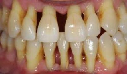 Parodontopatija-slika-Copy.jpg